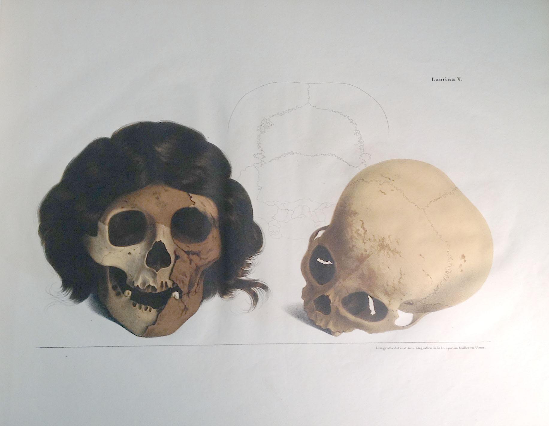IMG_1550_skulls1